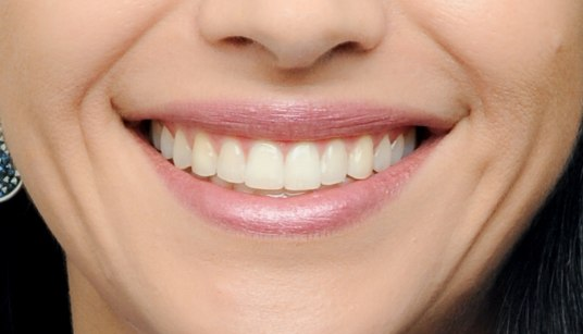 A beautiful smile is a good balance between gums and teeth.
