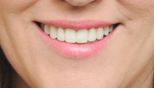 A bright, broad arch smile shows more teeth.