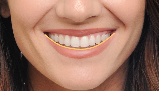 A smile arc is created when the curve of the teeth follows the lower lip.