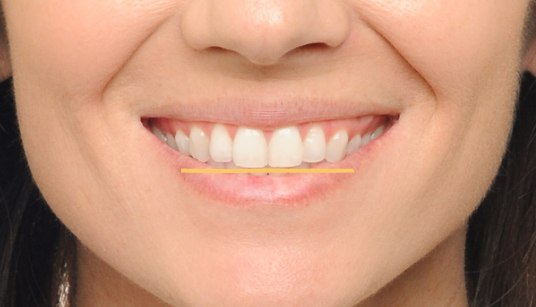 Teeth that appear at the same level create a flat smile.