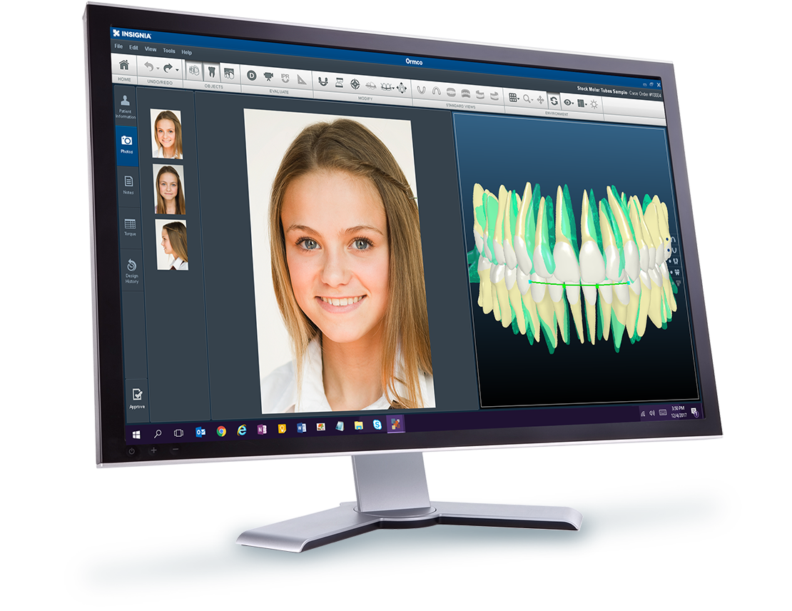 Insignia Advanced Digital Orthodontic Solution