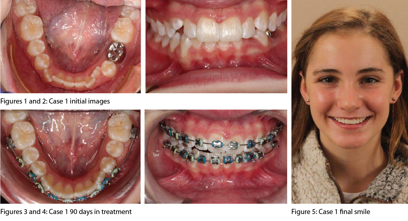 Figures 1 and 2: Case 1 initial images | Figures 3 and 4: Case 1 90 days in treatment | Figure 5: Case 1 final smile