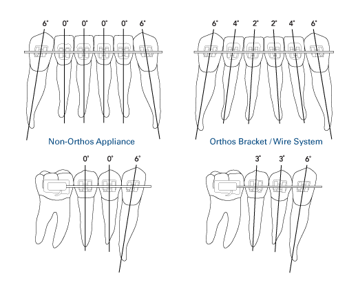 Progressive distal root tip for ideal root alignmen