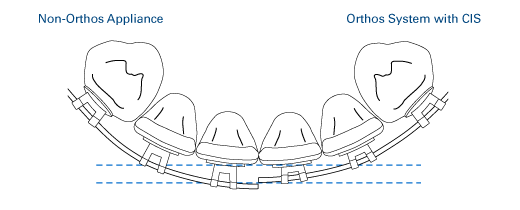 Low-profile lower anterior brackets