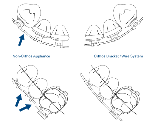 Improved cuspid-to-lateral and bicuspid-to-molar transitions eliminate the need for common first-order bends