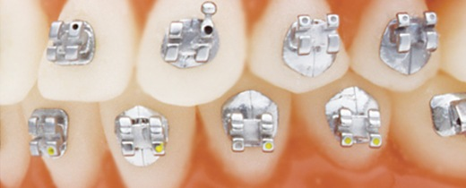 Gingivally offset tooth-shaped pads